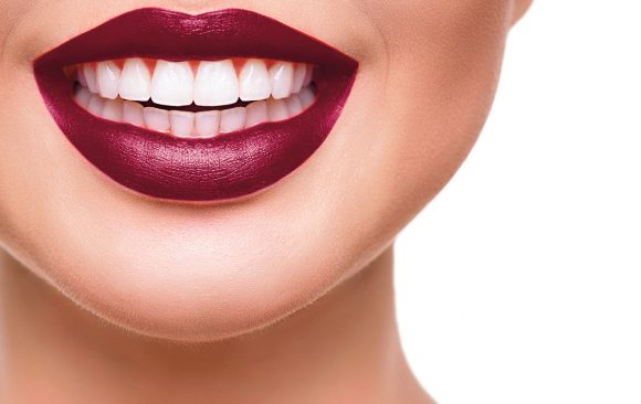 Teeth Whitening – Is it all white?